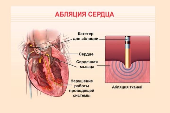0432 - The essence of heart ablation indications of how the postoperative period goes