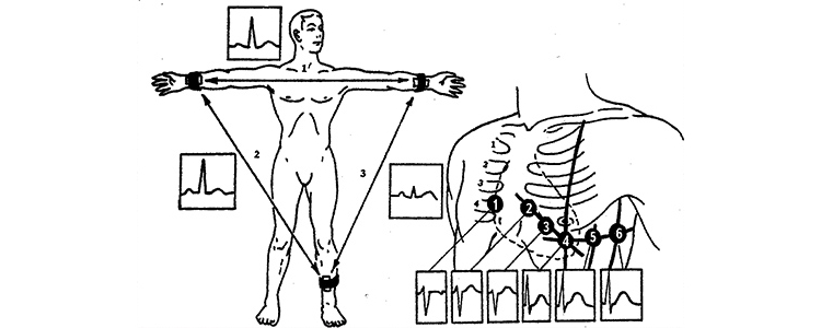 Точки наложения электродов при снятии электрокардиограммы