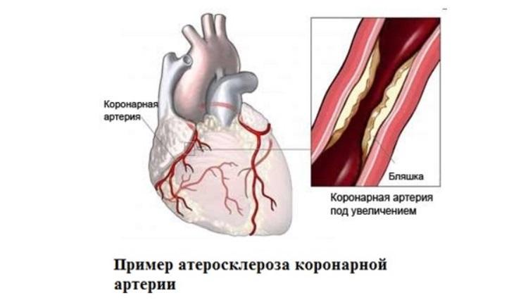 Атероскероз