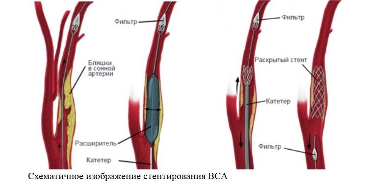 Схематичное изображение стентирования ВСА