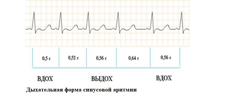 Дыхательная форма синусовой аритмии