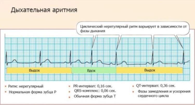 Дыхательная синусовая аритмия