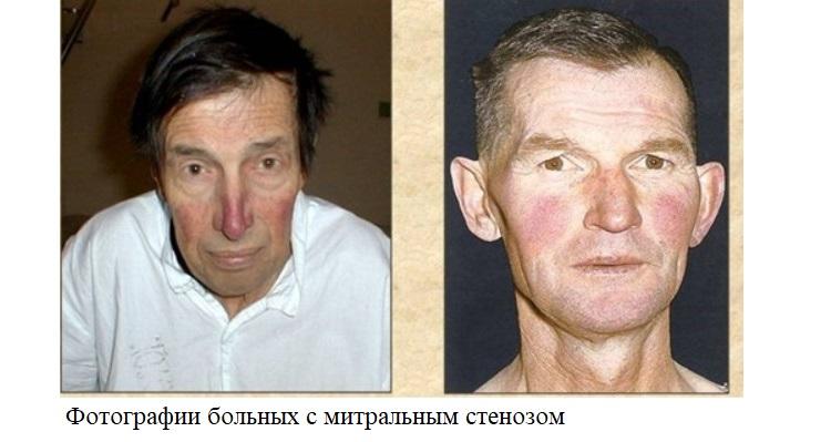 Фотографии больных с митральным стенозом