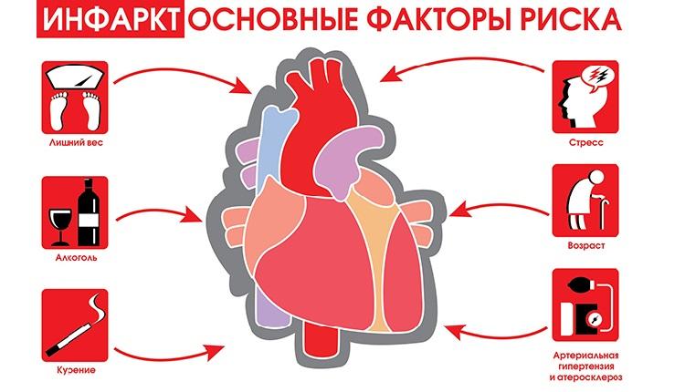 Инфаркт Факторы риска