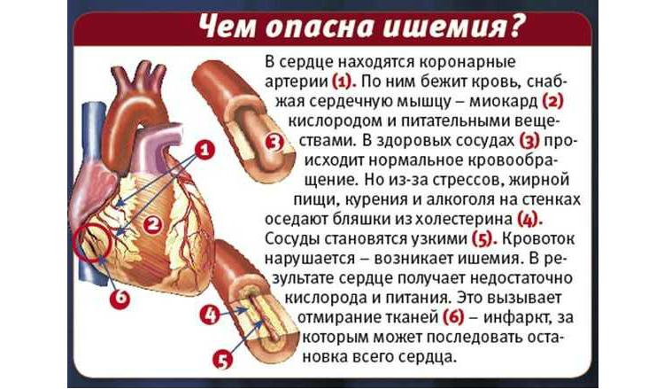 Ишемија - симптоми на корорнарна срцева болест и третман на коронарна срцева болест, што е тоа и што е тоа