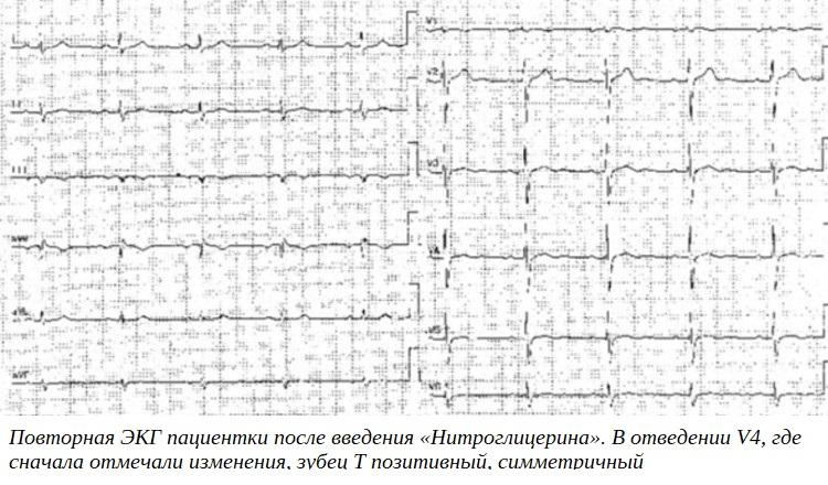 Повторная ЭКГ пациентки после введения «Нитроглицерина». В отведении V4, где сначала отмечали изменения, зубец T позитивный, симметричный