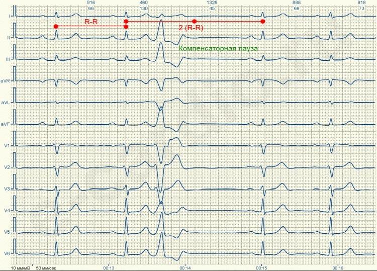 JeKG 5 - Monotope ventrikuläre Extrasystolen was ist das?