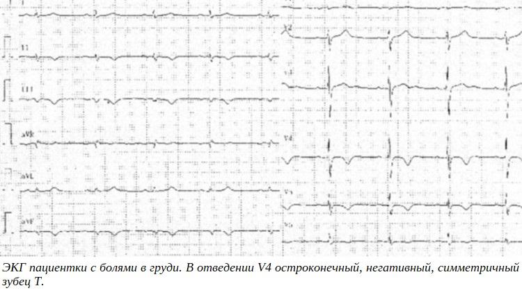 ЭКГ пациентки с болями в груди. В отведении V4 остроконечный, негативный, симметричный зубец T.