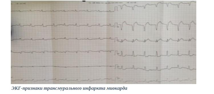 ЭКГ-признаки трансмурального инфаркта миокарда