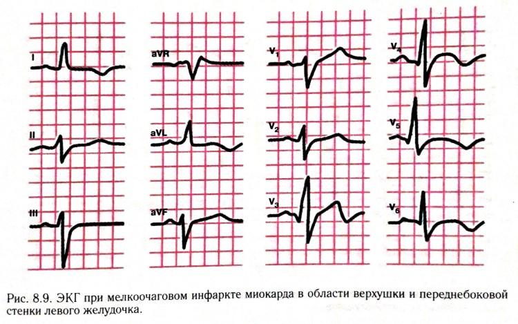 ЭКГ при микроинфаркте