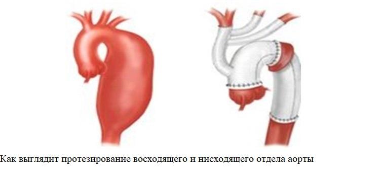 Как выглядит протезирование восходящего и нисходящего отдела аорты
