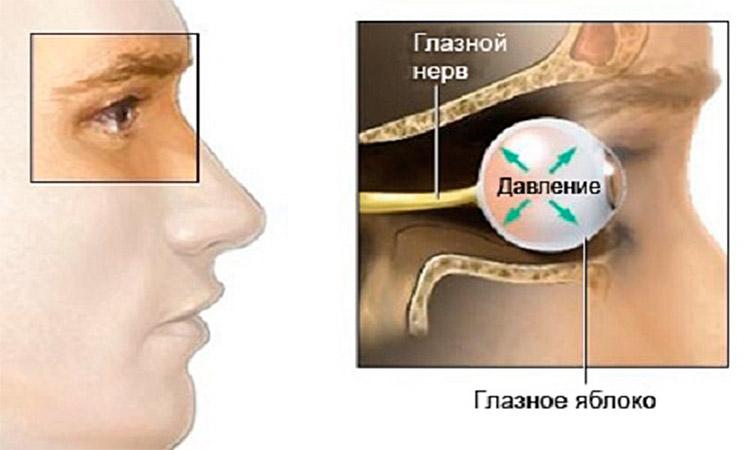 Лечение глазного давления