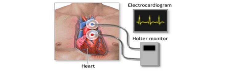 Obsledovanie serdca - Aritmia sinus jantung sedang pada anak dari 4 hingga 8 tahun, gejala dan pengobatan
