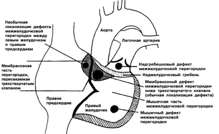 Перимембранозный дефект межжелудочковой перегородки
