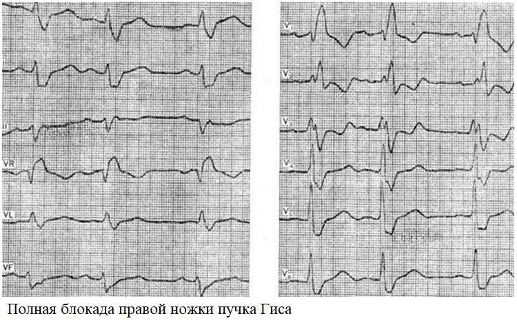 Polnaja blokada pravoj nozhki puchka Gisa - Slow intraventricular conduction what are these ECG indicators