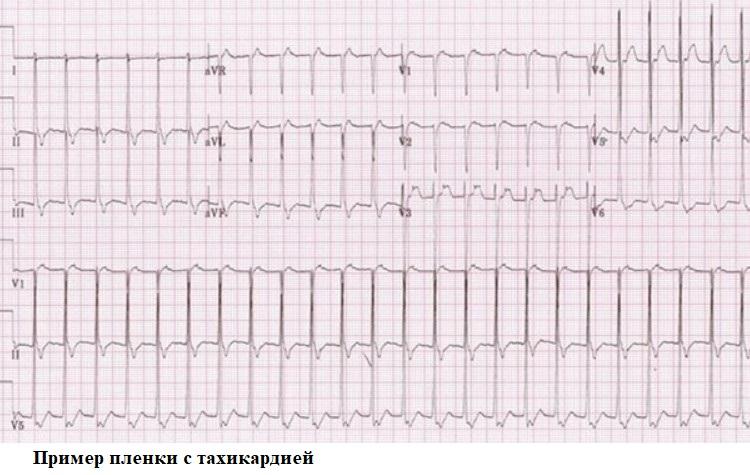 Primer plenki s tahikardiej - Срцеви палпитации што да правиме и како да се лекуваме