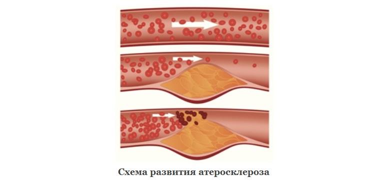 Схема развития атеросклероза
