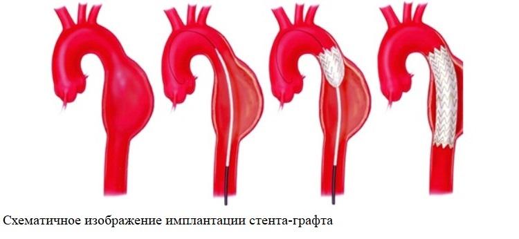 Схематичное изображение имплантации стента-графта