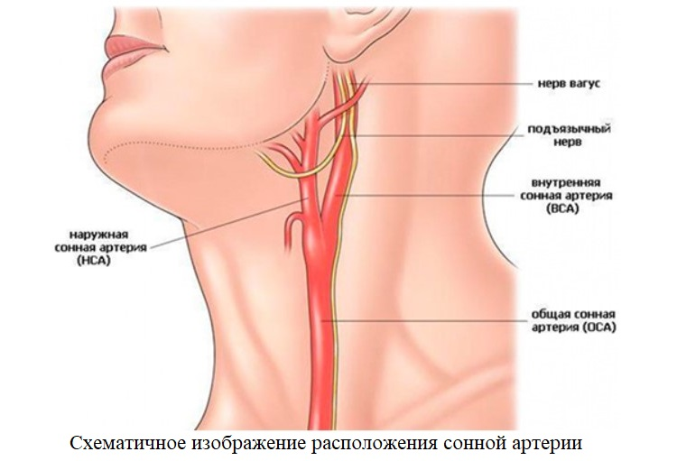 Shematichnoe izobrazhenie raspolozhenija sonnoj arterii - The causes and methods of treatment of plaques in the carotid artery