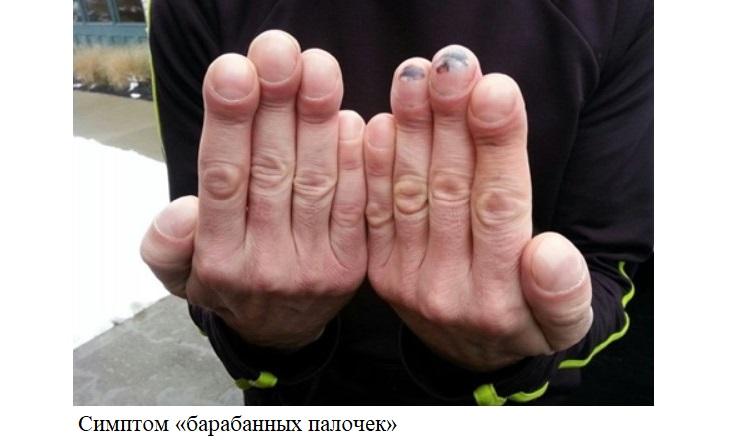 Симптом «барабанных палочек»