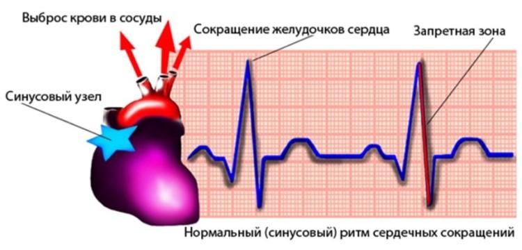 Sinusovyj uzel - Aritmia sinus jantung sedang pada anak dari 4 hingga 8 tahun, gejala dan pengobatan