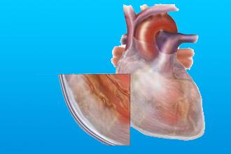 Tuberkuljoznoe porazhenija - Causes et symptômes du développement du traitement et du pronostic de la péricardite fibrineuse