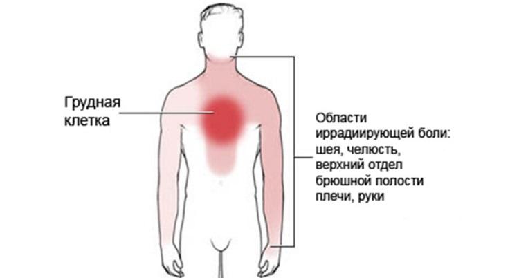 Варианты иррадиации боли при стенокардии Принцметала