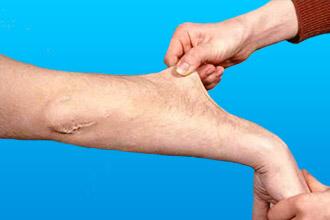 Причина возникновения аневризма аорты