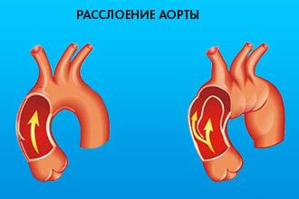 Типичные и нетипичные клинические проявления аневризмы аорты
