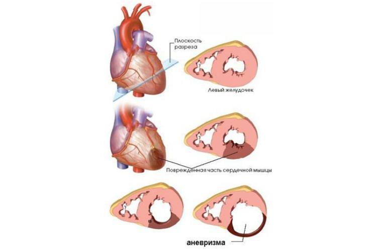 Процесс формирования аневризмы