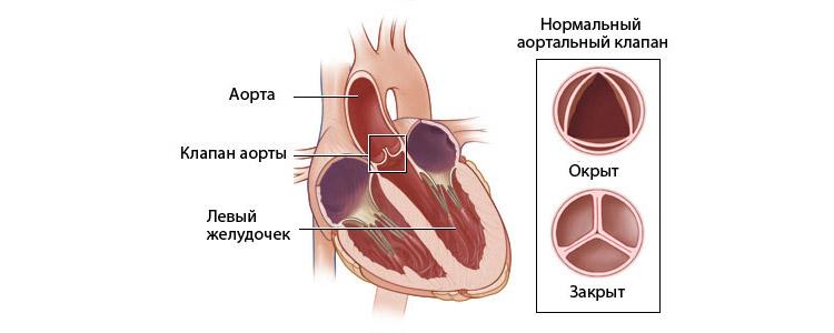 Как устроен клапан аорты