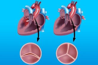 Лечение стеноза аортального клапана
