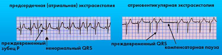 Антриовентрикулярные экстрасистолы на ЭКГ