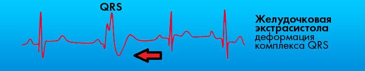 Желудочковая экстрасистола деформация комплекса QRS