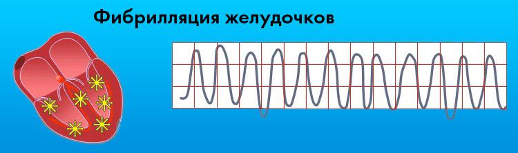 Фибрилляции желудочков на ЭКГ