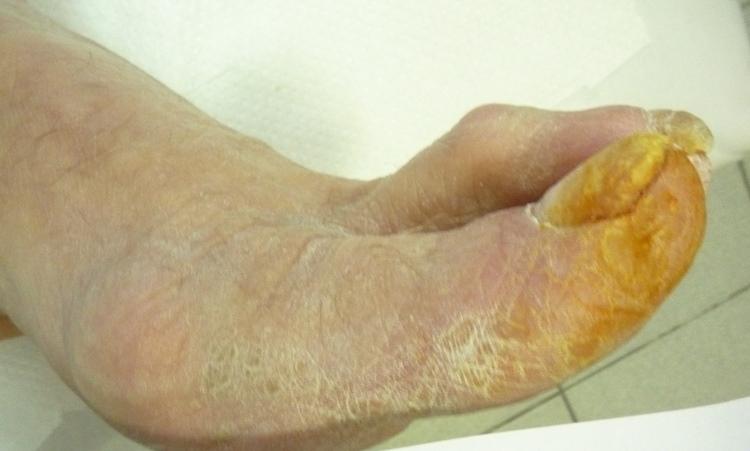 Атеросклероз нижних конечностей 2-й степени