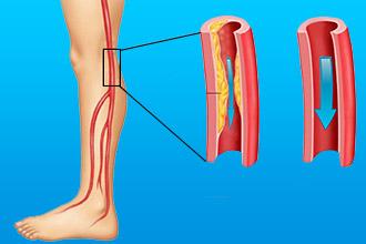 Причина атеросклероза нижних конечностей
