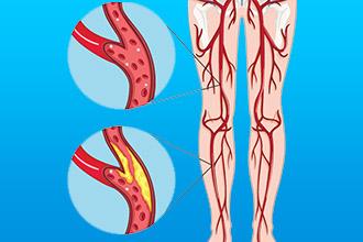 Диагностика атеросклероза нижних конечностей