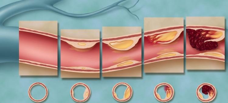Стадии и степень перекрытия просвета сосуда при атеросклерозе