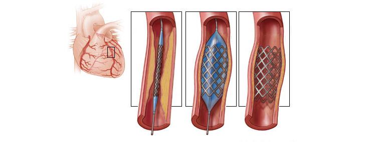 Стентирование артерий