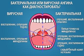 Как различить бактериальную ангину от вирусной