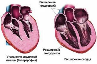 bolit serdce narodnye sredstva 3 - Народные средства для укрепления сердечно сосудистой системы