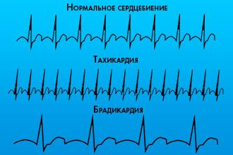 Изображение - Пульс и давление спортсмена bradikardiya-u-sportsmenov_1