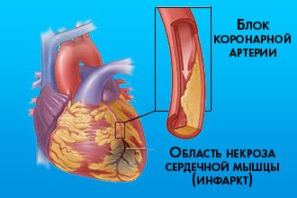 Изображение - Пульс и давление спортсмена bradikardiya-u-sportsmenov_2