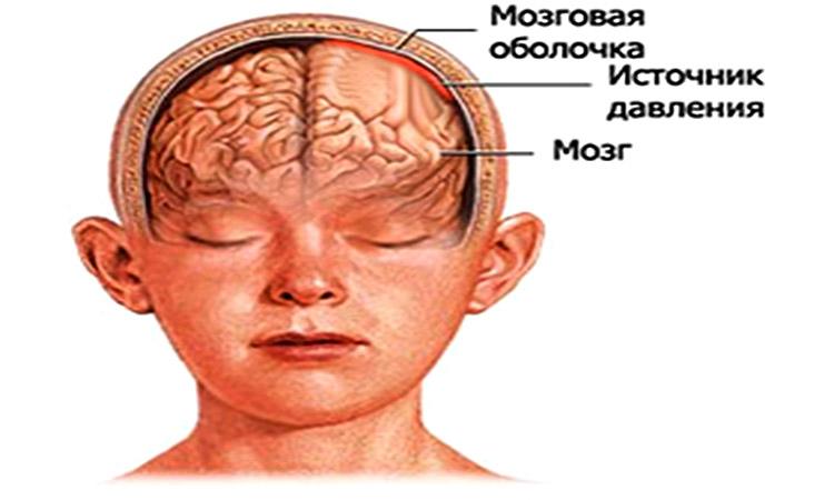 Изображение - Нормальное давление у ребенка 3 лет davlenie-u-detey