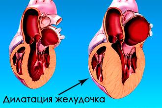 Дилатация желудочка