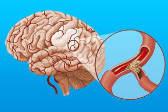 Вегето-сосудистая дистония головного мозга