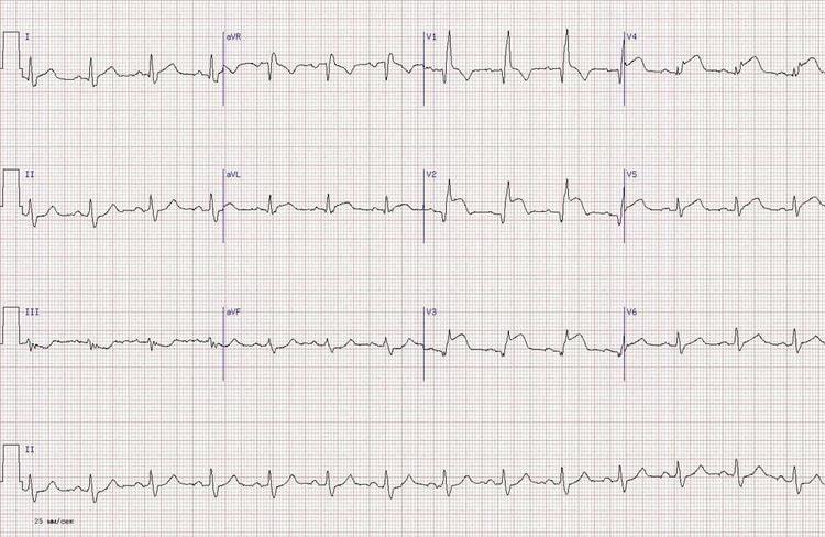 Переднеперегородочный инфаркт миокарда на ЭКГ