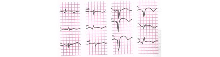 Инфаркт миокарда с переходом на верхушку сердца на ЭКГ