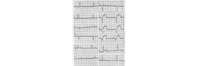 Инфаркт миокарда передней стенки ЛЖ на ЭКГ